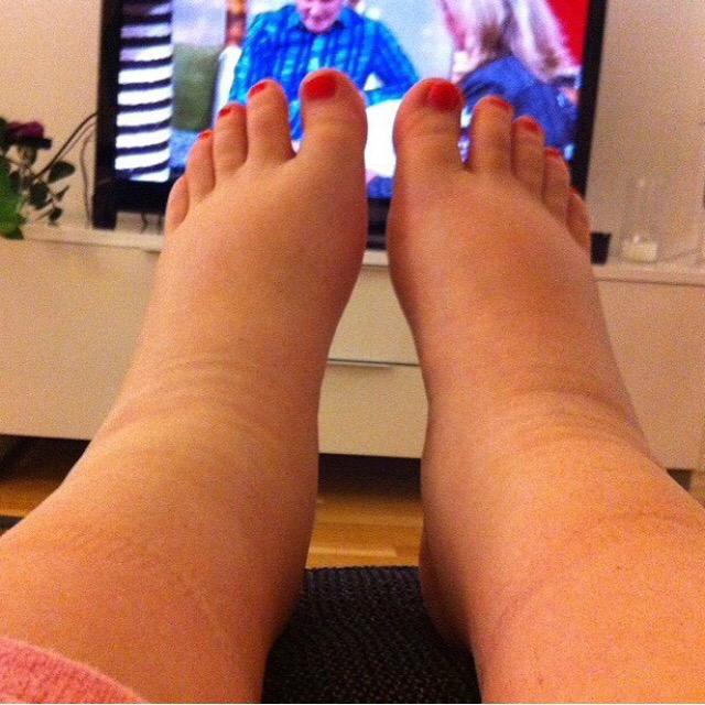 svullna fötter gravid farligt